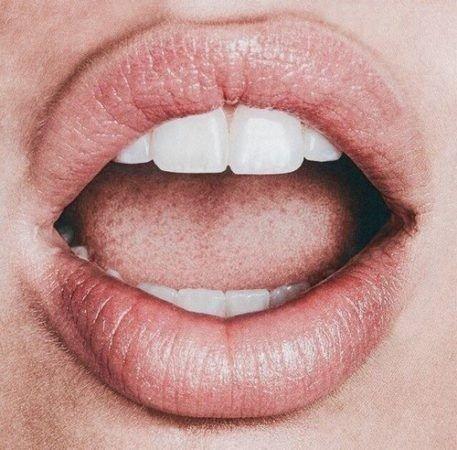 Hindari 10 Penyebab Bau Mulut yang Menganggu Keseharian Kita 04.jpg