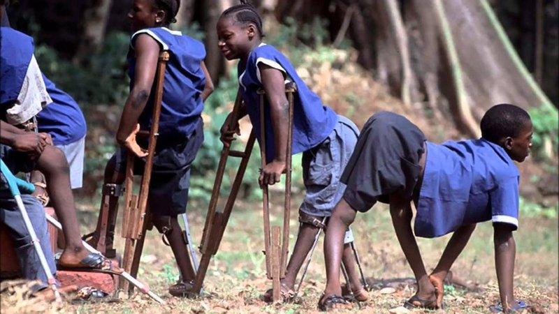 Ini Gejala Polio pada Anak Berdasarkan Jenisnya 3.jpg