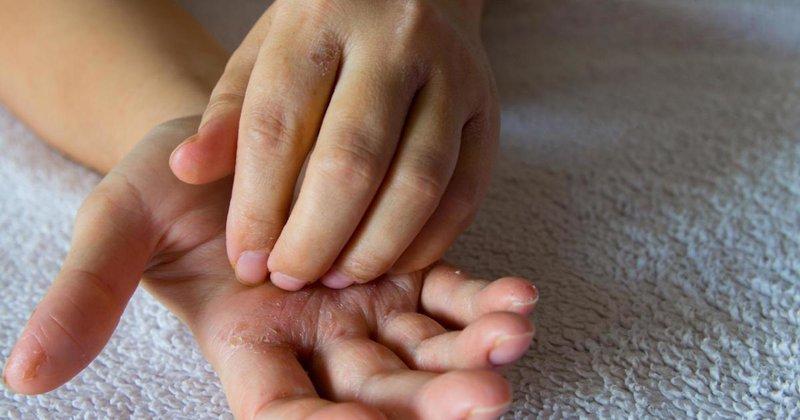 Ini Penyebab Telapak Tangan Gatal