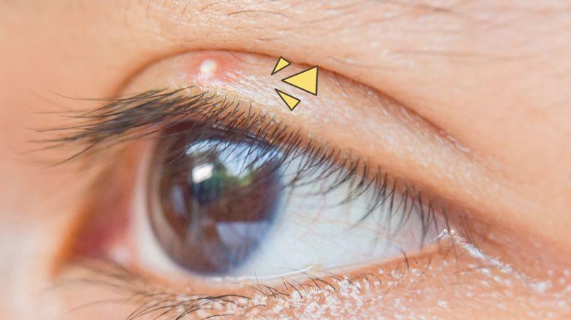 Ketahui Penyebab Jerawat Di Kelopak Mata