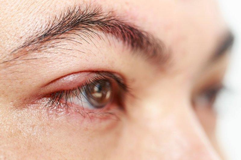 Jerawat di Kelopak Mata, Ini Penyebabnya-1.jpg