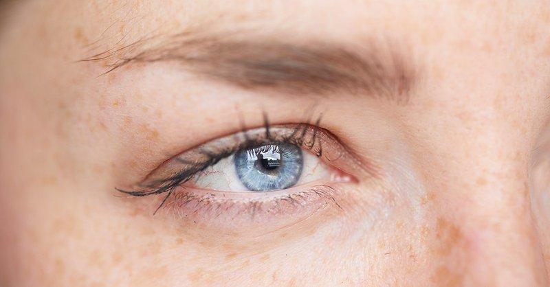 Jerawat di Kelopak Mata, Ini Penyebabnya-4.jpg