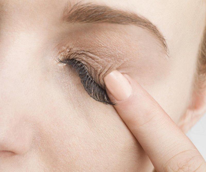 Jerawat di Kelopak Mata, Ini Penyebabnya-5.jpg