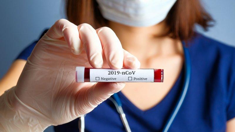 XX Fakta Tentang RI-GHA COVID-19, Alat Rapid Test Buatan Indonesia