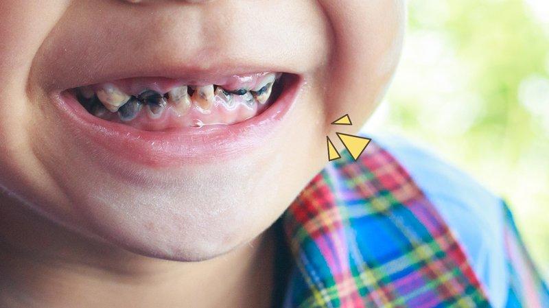 manfaat fluoride untuk kesehatan gigi anak