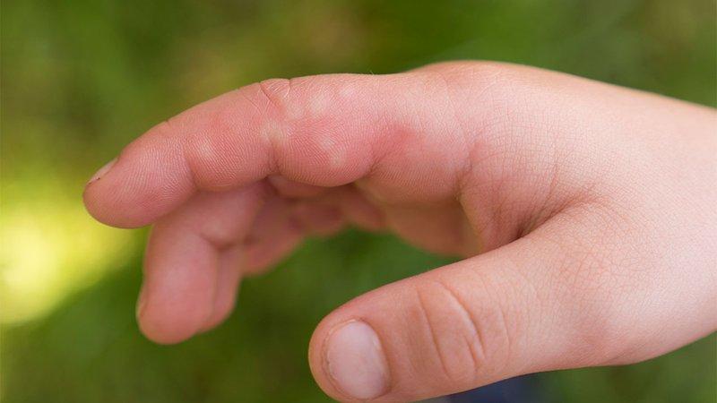 Fakta-fakta Seputar Antibiotik