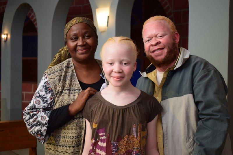 Kenali Lebih Dalam Albino pada Anak 1.jpg