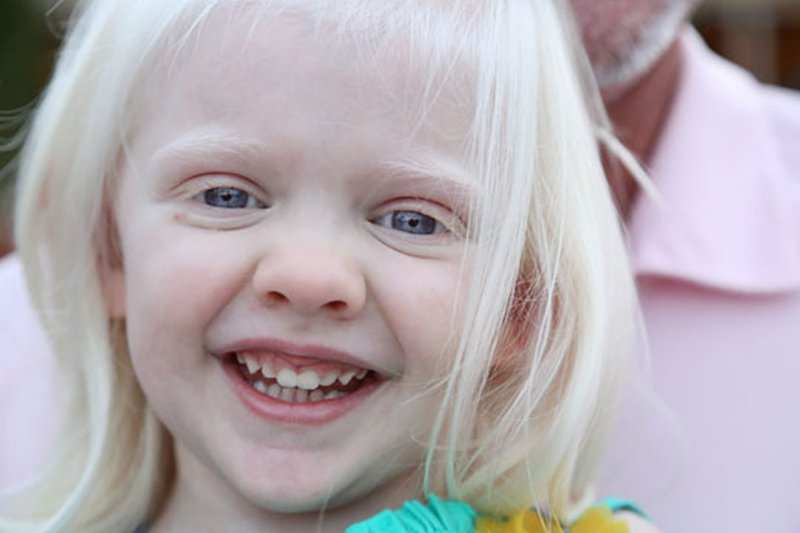 Kenali Lebih Dalam Albino pada Anak 2.jpg