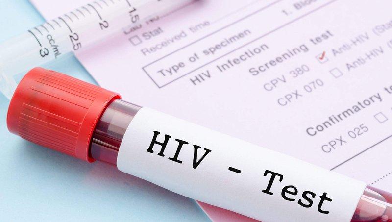 Kenali Penyebab Dan Gejala Infeksi HIV Pada Anak 1.jpg