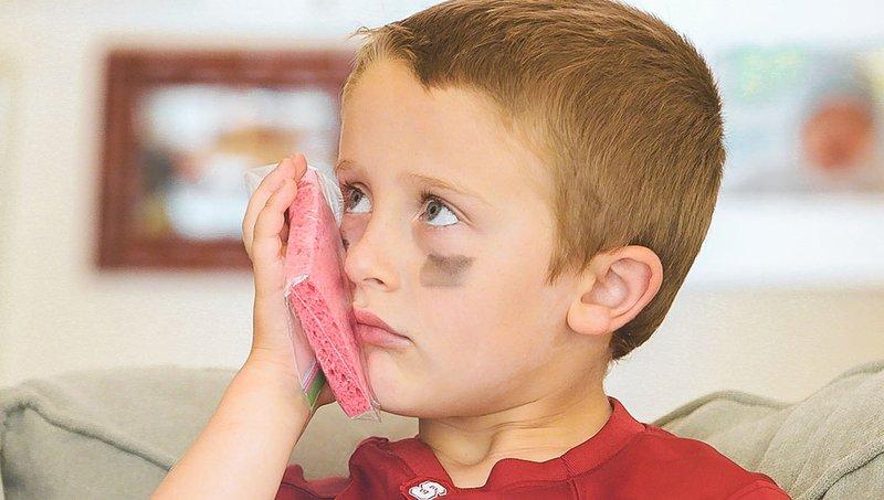 Kenali Waktu Tepat Menggunakan Kompres Panas Dan Kompres Dingin Untuk Anak, Jangan Tertukar! 3.jpg