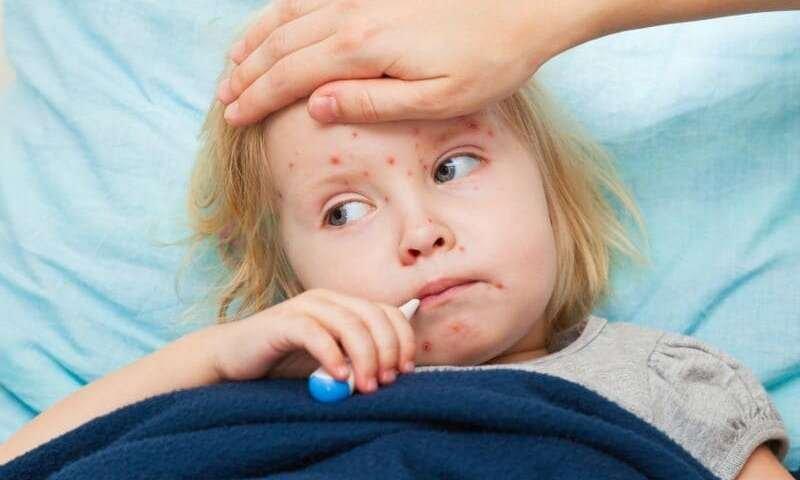 Kenali gejala penyakit campak pada si Kecil (1).jpg