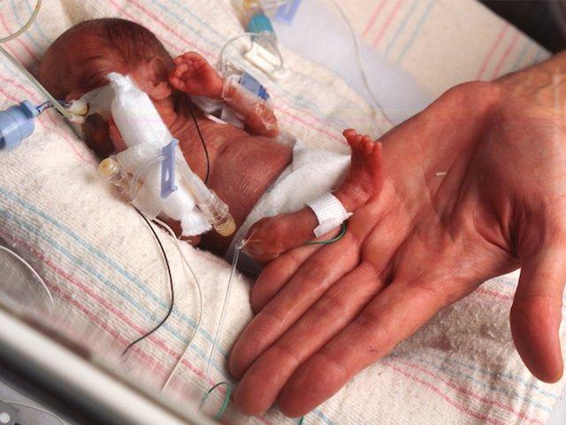 Ketahui Penyebab dan Komplikasi Kelahiran Prematur yang Mendadak 2.jpg