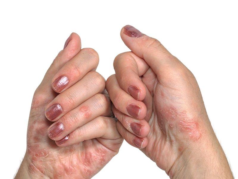 Kulit Tangan Mengelupas, Apa Penyebabnya-5.jpg