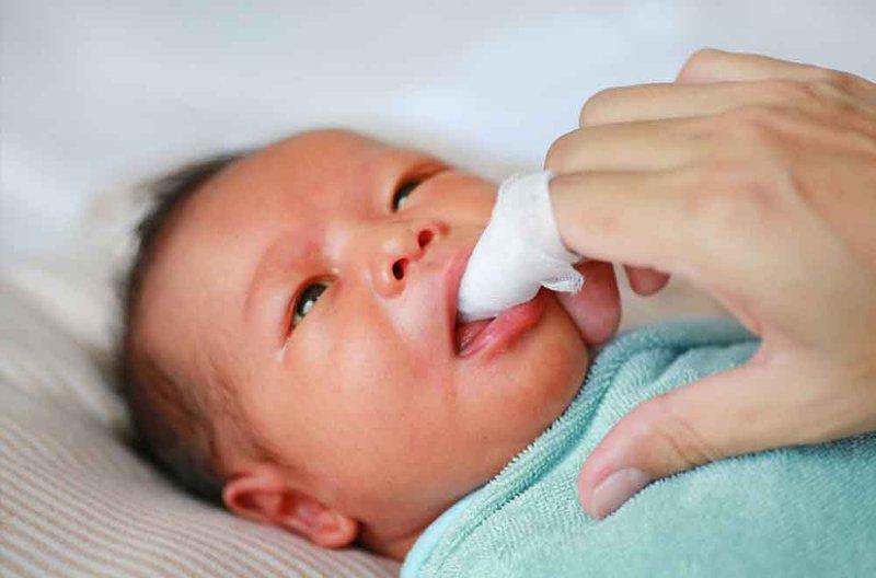 lidah bayi putih