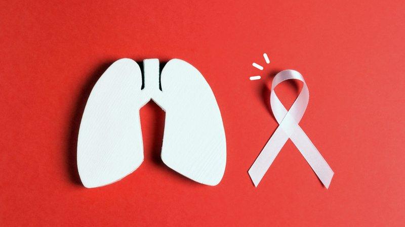 Kanker paru-paru, penyebab sesak napas.jpg