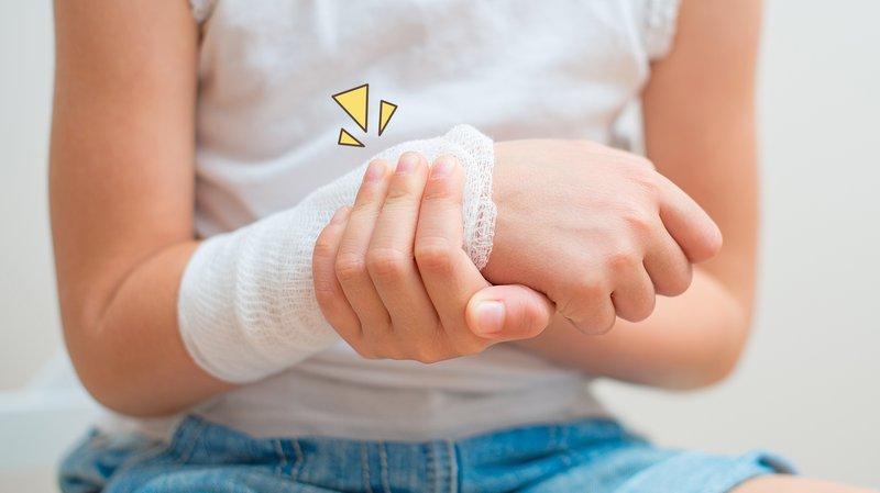 cara menghilangkan luka bakar pada anak