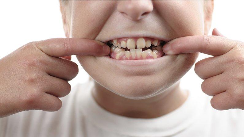 Jenis gigi gingsul