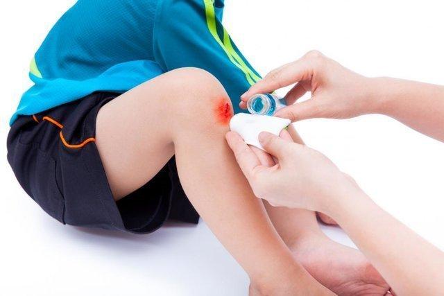 Manfaat madu untuk anak - menyembuhkan luka.jpg