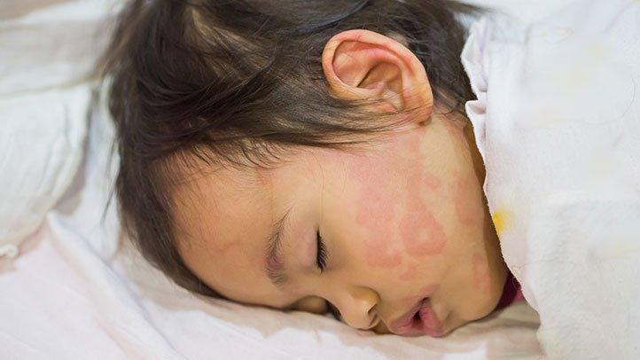 Mengenal Amoxicillin Rash Pada Bayi__-2.jpg