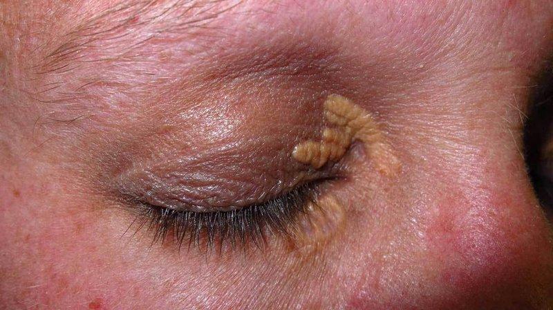 Mengenal Xanthelasma, Pengendapan Kolesterol di Kelopak Mata 01.jpg