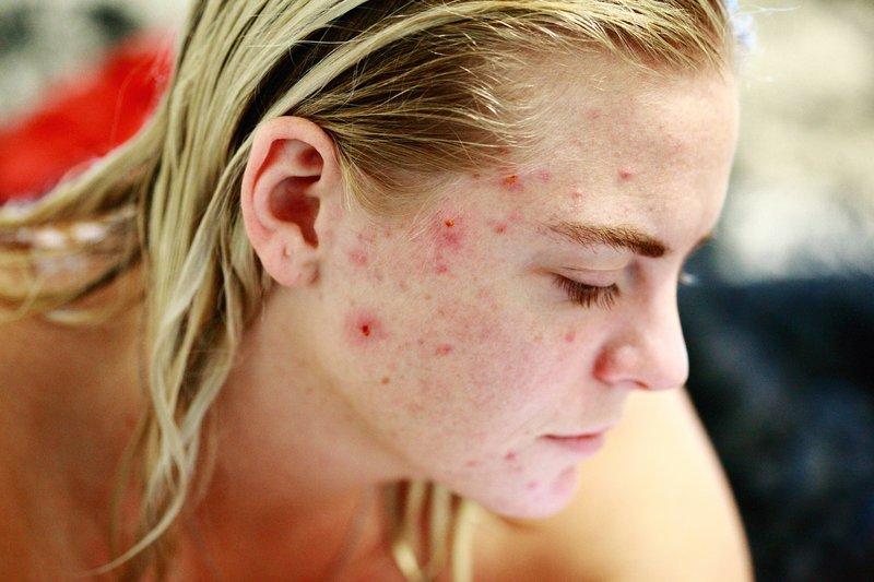 fungal acne adalah