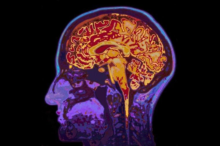 Menyikat gigi secara teratur bisa kurangi penyakit Alzheimer ini penjelasannya - koneksi mulut ke otak.jpg