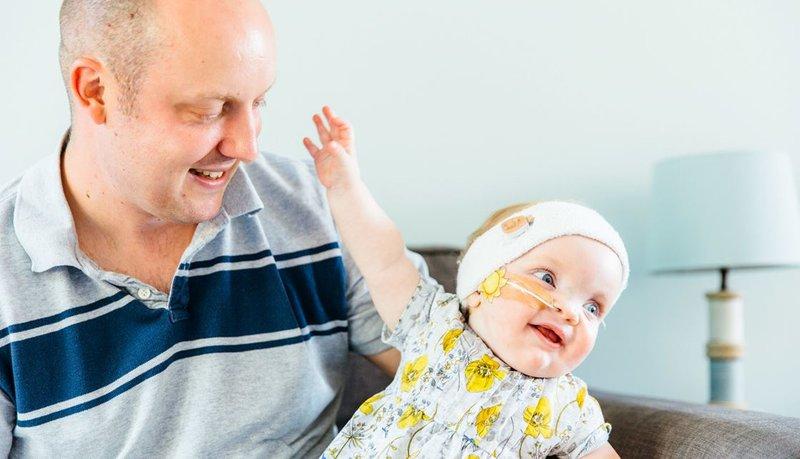 Meski Imut, Dagu Kecil Pada Bayi Bisa Jadi Ciri Sindrom Pierre Robin 3.jpg