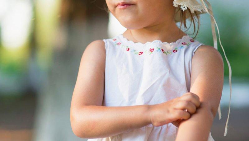 Moms Wajib Tahu! Waktu Paling Rentan Bagi Balita Terkena Penyakit Akibat Gigitan Nyamuk 2.jpg