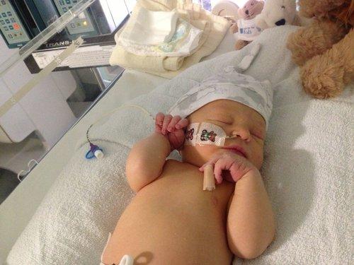 Mengenal Beberapa Kelainan Fungsi Ginjal atau Penyakit Ginjal pada Bayi
