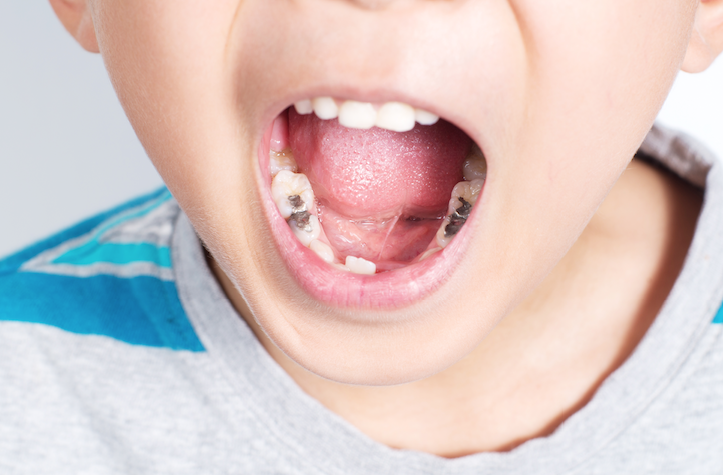 Obat sakit gigi anak gigi berlubang - penyebab gigi berlubang.png