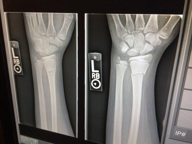 balita patah Tulang pada Anak-anak.jpg