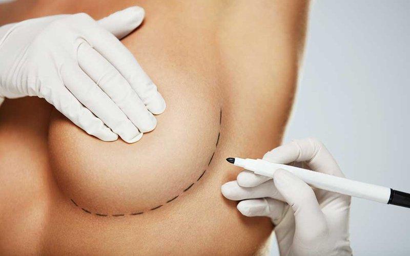 Payudara Implan Bisa Ganggu Kesehatan Fisik - penyakit implan payudara - shutterstock.jpg