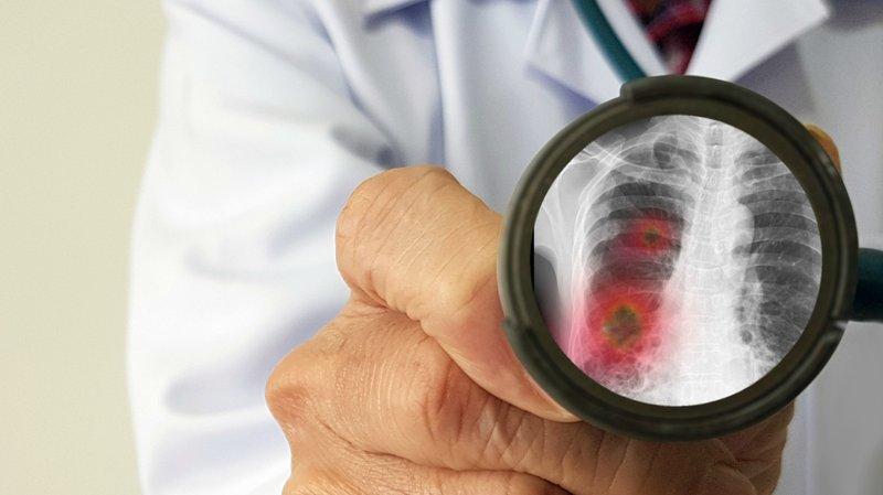 Peneliti Kembangkan Vaksin Virus Corona Novel, Rencananya Tersedia 18 Bulan Lagi.jpg