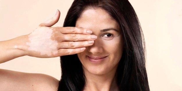 Pengobatan Vitiligo.jpg