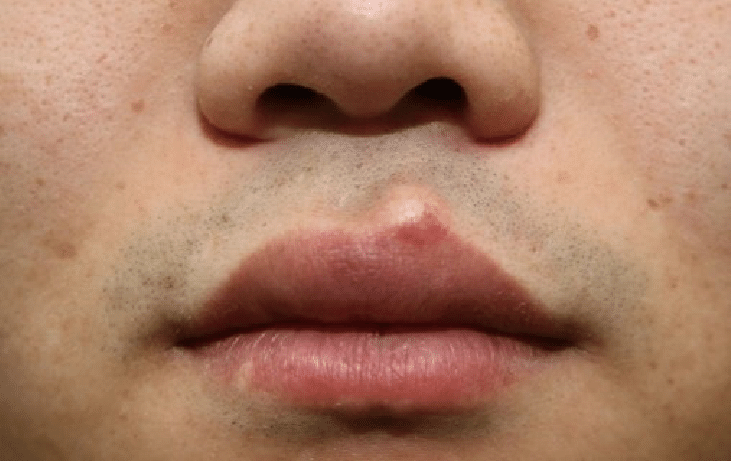 Penyebab Bibir Bentol Kecil