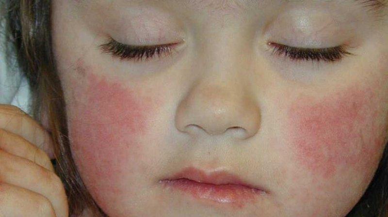 gejala rosacea