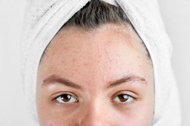 Perawatan Kulit Paling Tepat untuk Kulit Acne Prone.jpg