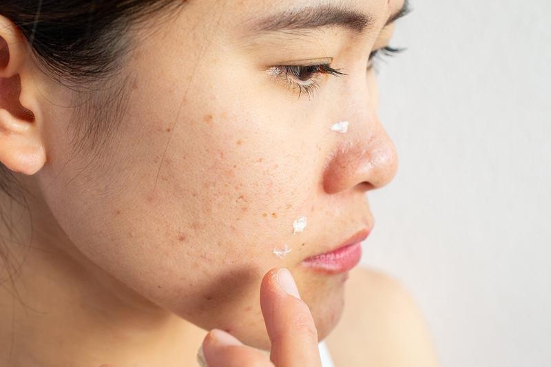 Perawatan Kulit Paling Tepat untuk Kulit Acne Prone-3.jpg