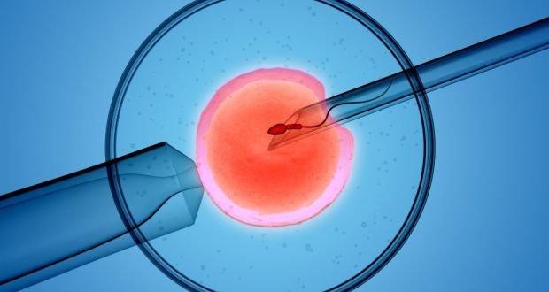Perawatan untuk Penderita Endometriosis yang Sedang Menjalani Program Hamil 04.jpg