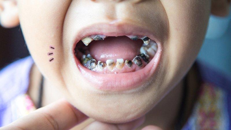 Perbedaan Erosi Gigi dan Karies Gigi pada Anak