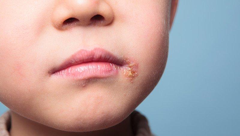 Perbedaan Sariawan Dan Herpes Pada Balita Jangan Tertukar