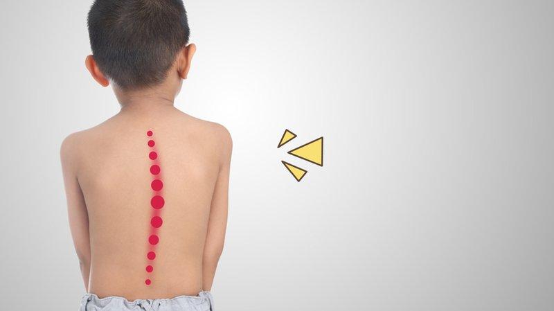 Ini Penyebab Imunodefisiensi pada Anak dan Dampaknya, Catat!