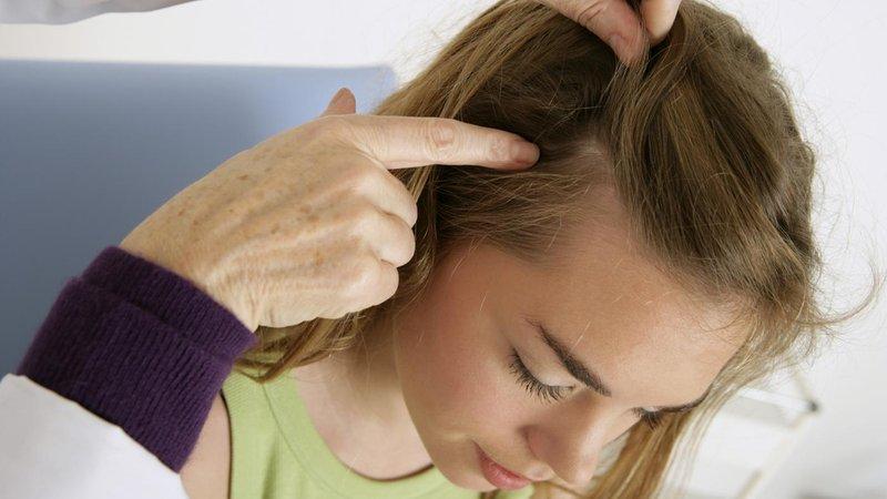 Rambut si Kecil rontok, normal atau tidak- plus cara mengatasinya (1).jpg