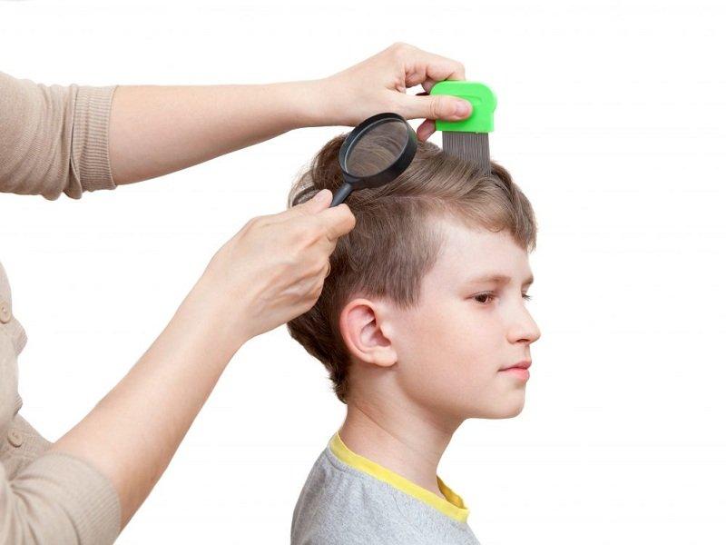 Rambut si Kecil rontok, normal atau tidak- plus cara mengatasinya (2).jpg
