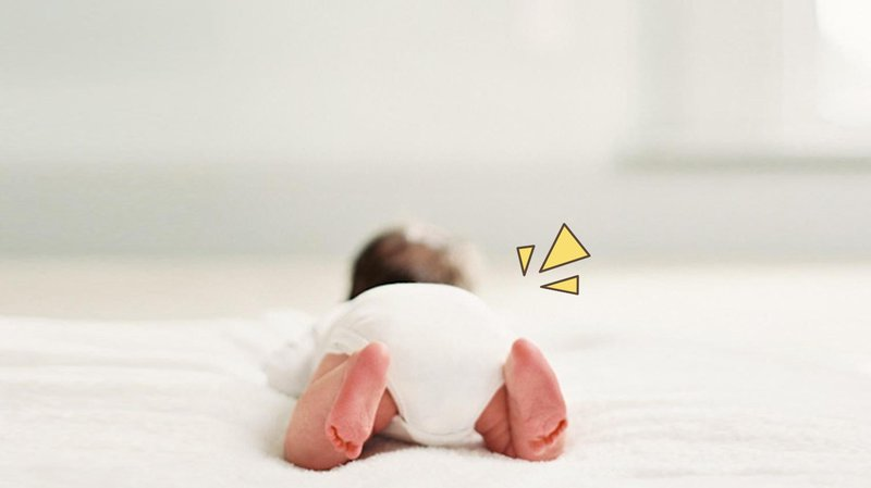 masalah kulit bayi baru lahir - ruam popok