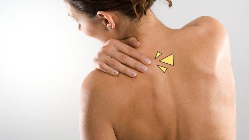 cara menghilangkan jerawat di punggung