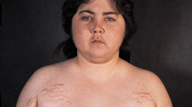 Sindrom Cushing.jpg