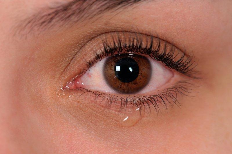 gangguan, kesehatan, mata
