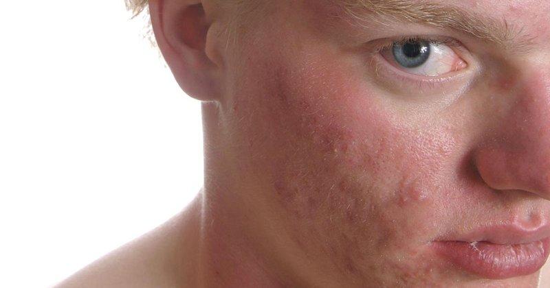 Teenage-boy-suffering-from-acne.jpg