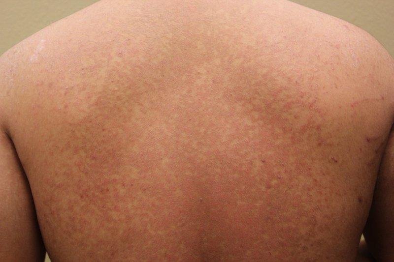 penyakit kurap Tinea-Versicolor.jpg